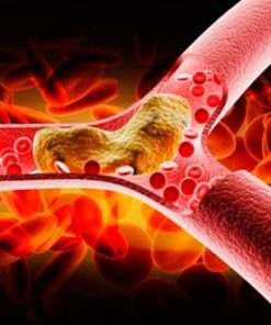 Colesterol - Trigliceridos
